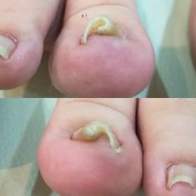 両親指の5年物の巻き爪