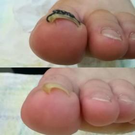左足巻き爪矯正1か月前