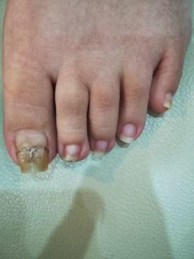 巻き爪小さい指