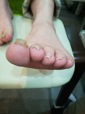 巻き爪小さい指の正面