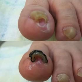 左足の巻き爪矯正後のビフォーアフター