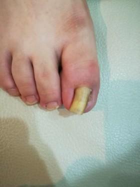 右足の巻き爪を上からの写真