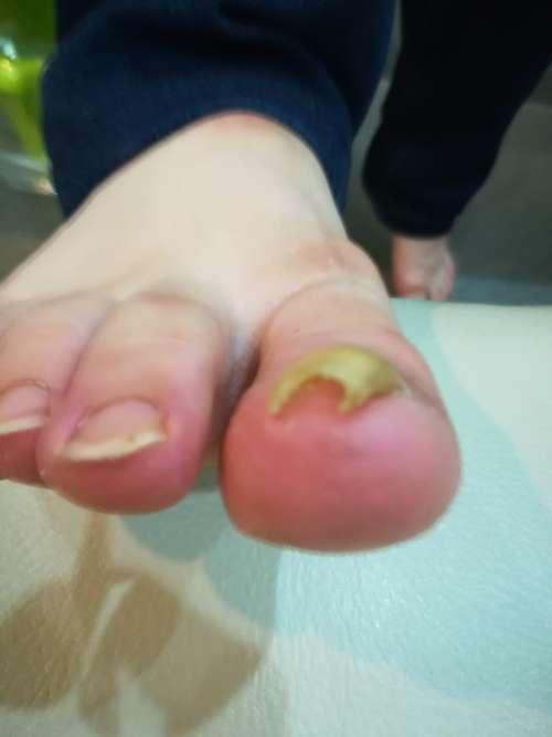 右足巻き爪矯正