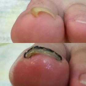 1か月後の巻き爪矯正