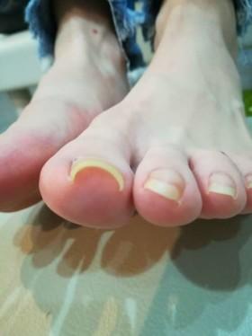 矯正前の左足