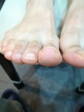 矯正前の右親指の巻き爪
