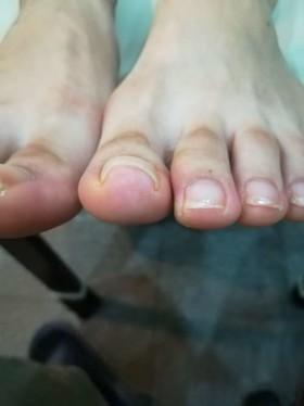 矯正前の左巻き爪