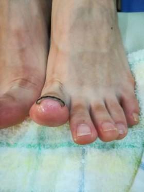 左足の矯正後