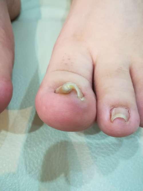左足巻き爪