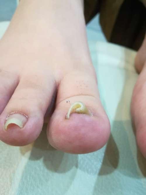 右足巻き爪