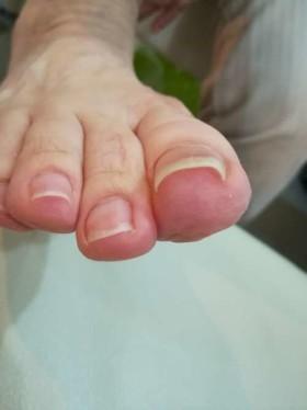 巻き爪矯正前の右足