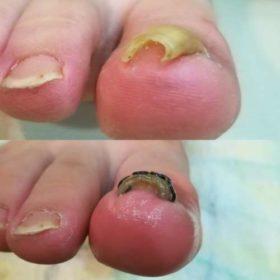 右足の巻き爪矯正前後
