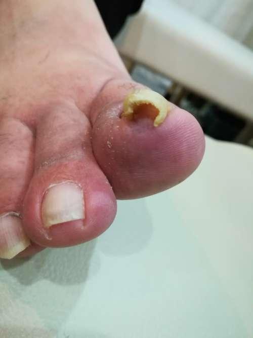 右足の巻き爪矯正前