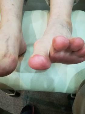 2回目矯正前の左足