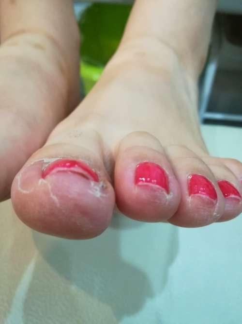 左足の巻き爪矯正前