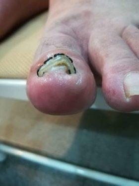 左足の巻き爪矯正