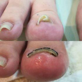 右足の巻き爪ビフォーアフター