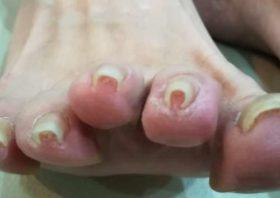 右足正面の巻き爪
