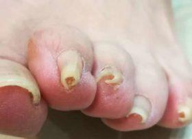 左足正面の巻き爪