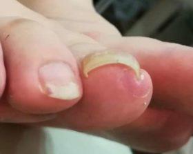 右足の巻き爪