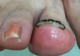 3回目の右足の矯正