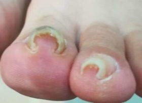 左足の矯正前