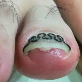 右の巻き爪矯正後