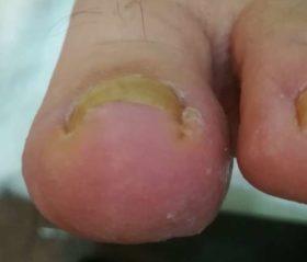 巻き爪矯正前の正面