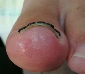 巻き爪矯正後の正面