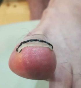 左足の巻き爪矯正後