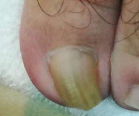 巻き爪矯正前の上から写真