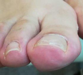 左足の巻き爪