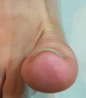 巻き爪の正面