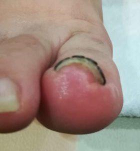 巻き爪矯正後の右足