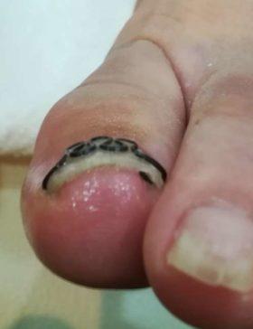 巻き爪矯正後の左足