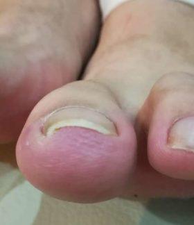 左の巻き爪