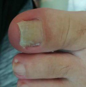 巻き爪矯正1カ月後