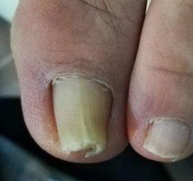 左の巻き爪矯正前