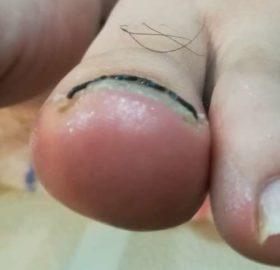 左の巻き爪矯正後