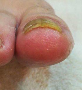 右足の巻き爪矯正後
