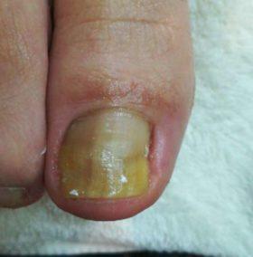 右足の巻き爪矯正後の上から