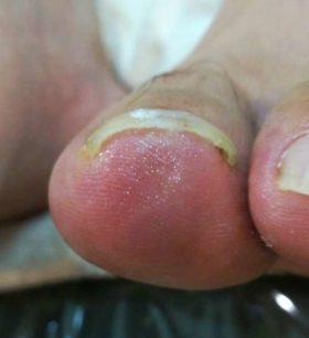 左の巻き爪矯正