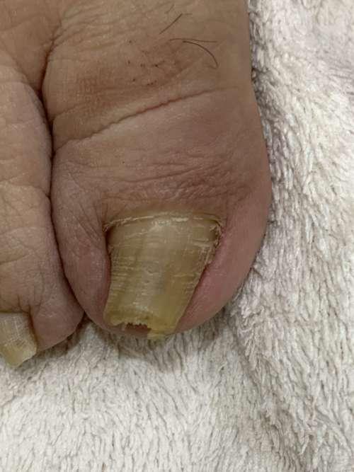 右の巻き爪