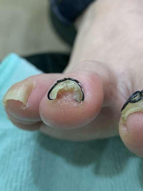 人差し指の巻き爪矯正