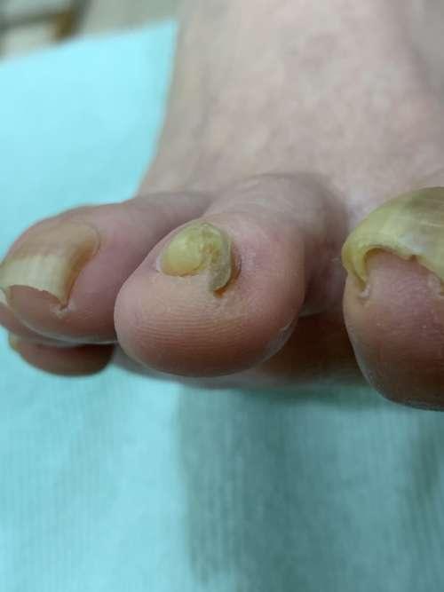 人差し指の巻き爪